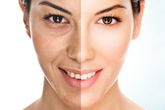 OFFERS General: Chemical Peel