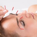 OFFERS General: Natural Facelift