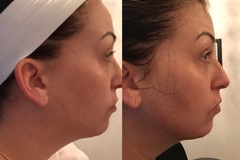 OFFERS General: Cryotherapy Facial