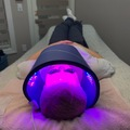 OFFERS General: Microneedling + LED
