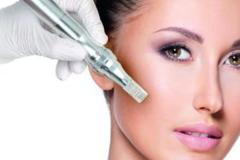 OFFERS General: Micro-Needling